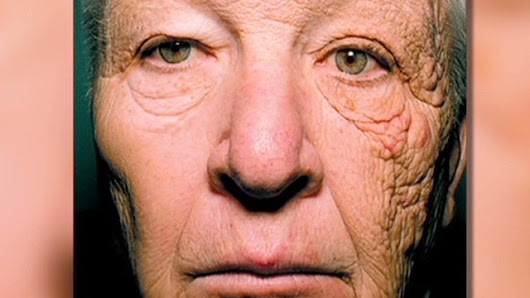 There's proof: Sunscreen reduces skin aging