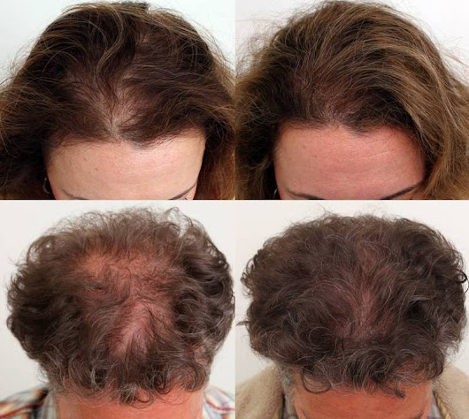 Medical Therapy - True & Dorin Medical Group - Hair Restoration