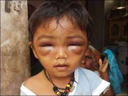 टीचर ने मासूम को बेरहमी से पीटा आंखों में आ गई सूजन