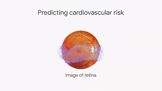 Google AI Levels Up Retinal Scans | ALEX SHOOLMAN