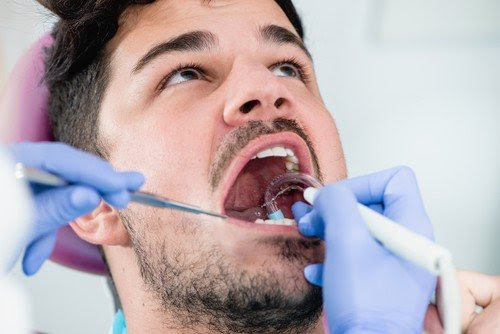 Why You Need Routine Dental Cleanings | Boynton Beach Dentist