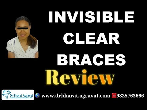 Invisible Clear Braces Reviews On Cost, Pros & Cons, Experience, Before After in Ahmedabad India