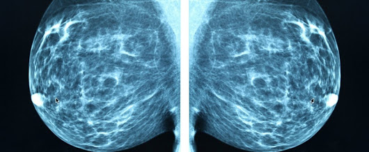 Scientists may have found a way to stop breast cancer spreading to the bones
