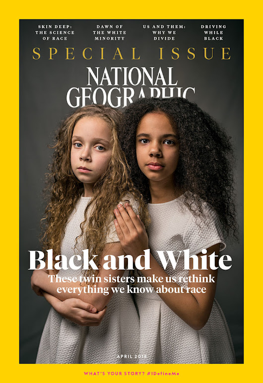 These Twins, One Black and One White, Will Make You Rethink Race — National Geographic