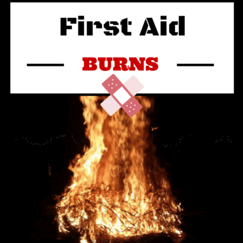 Burns its causes signs and treatment