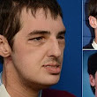 Pictured: Horrifically injured gun accident victim shows off results of incredible face transplant