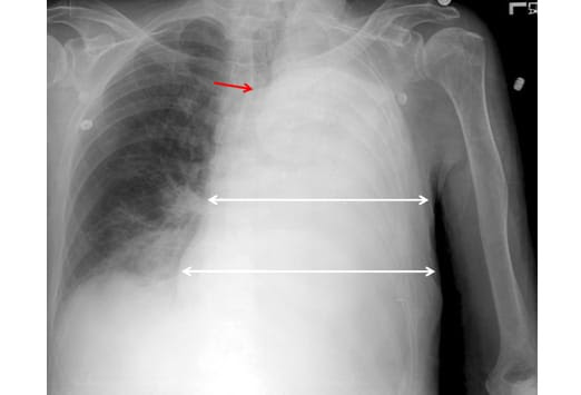What To Look For On A Chest X Ray Slideshow
