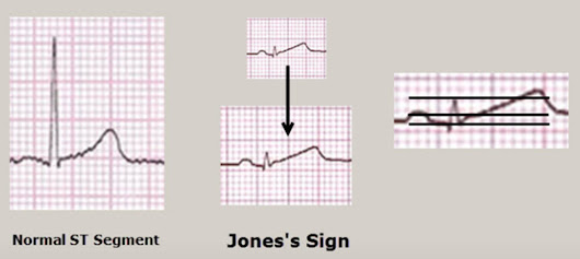 Dr. Jones's ECG Blog | Medicus of Houston