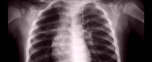 An Unexpected New Lung Function Has Been Found - They Make Blood
