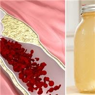 Công thức vàng thông tắc động mạch, làm sạch mỡ máu