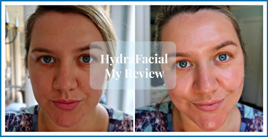 HydraFacial - The Lifestyle Lady