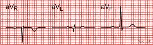 Electrocardiography (EKG): An Introduction | Medicalopedia