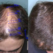 San Jose Is The Biggest City In The Bay Area, But Is It The Best for a Hair Transplant?