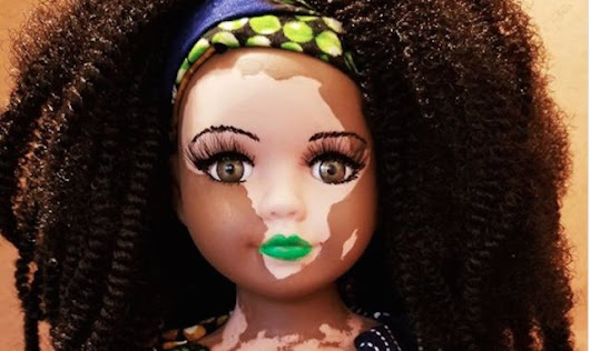 Artist Creates Dolls With Skin Conditions So People Will Love Their Differences