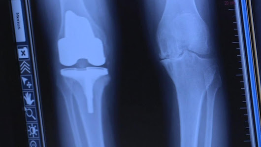 Bay Area doctors use new device to make knee replacement surgery more precise |