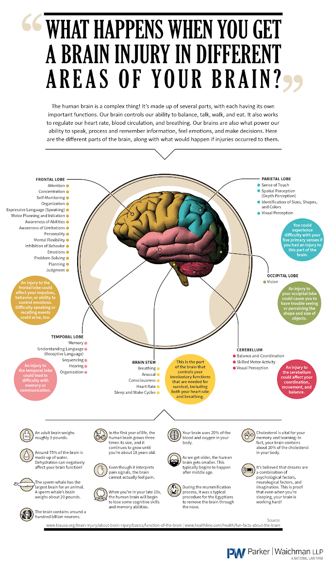 Infographic : What happens when you get a brain injury in different areas of the brain.