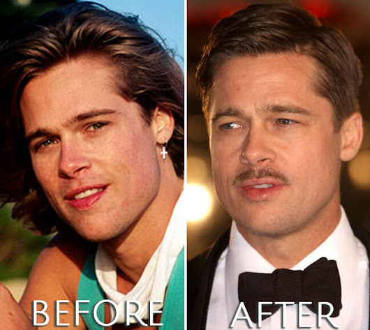 Brad Pitt Before & After Plastic Surgery Photos