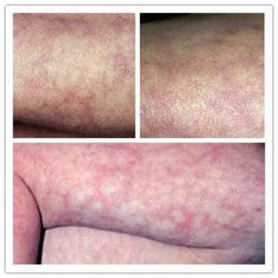 What is Mottled Skin (With Pictures) | Actforlibraries.org