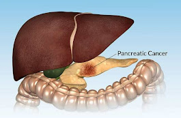 10 Warning Signs of Pancreatic Cancer You Should Never Ignore