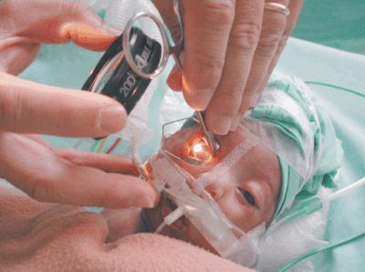 Resultado de imagem para retinopatia prematura