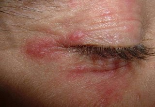 Perioral dermatitis | Primary Care Dermatology Society | UK