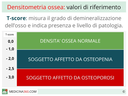 Densitometria ossea: cos' è e come si esegue l'esame moc