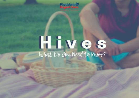 4 Things You Should Know About Hives