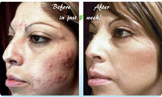 Is Acne No More a Scam