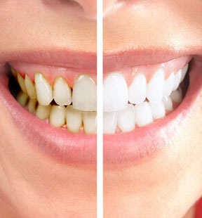 How Much Does It Cost To Get Your Teeth Whitened Teethwalls