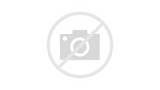 About Traumatic Brain Injury Pictures