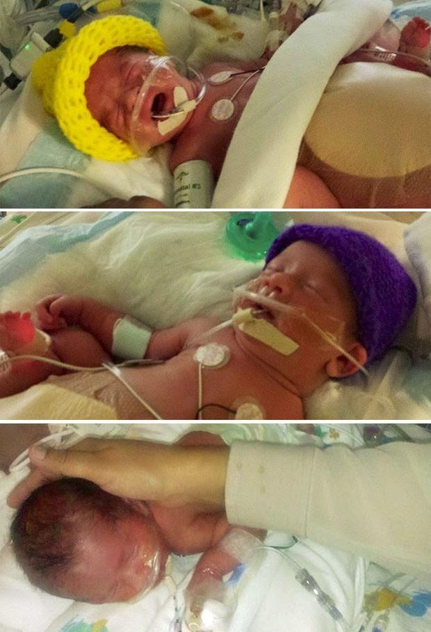 Catalina, Ximena e Scarlett há um ano. (Foto: Reprodução/Facebook/tripletstorres)
