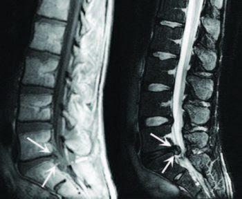 Lumbar Spine Disc Herniation Imaging - El Paso Chiropractor