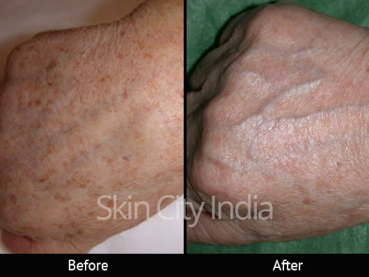 Hair Removal Before After - Skin City | Health Care