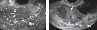 Uterine Cancer Ultrasound Images