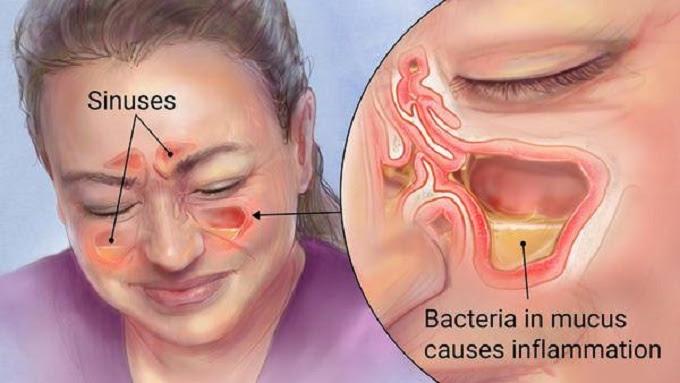 Sinusite e Rinite: Tratamento Natural para Sinusite e Rinite – Gotas Medicinais de Jaraguá do Sul - Representante na região de Florianópolis (48) 3094-5746 - Whatsapp (48) 99131-9240.