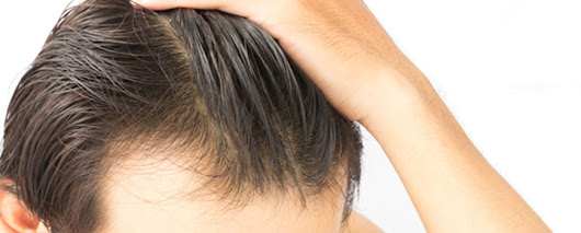What's New? New Trends in Hair Transplants | Limmer Hair Transplant Center