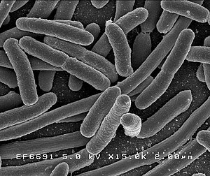 Escherichia coli: Scanning electron micrograph...