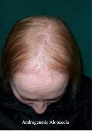 ریزش موی ارثی زنانه
