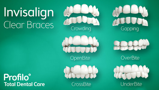 Invisalign: A Dental Treatment in Pennsylvania Without Being Noticed | mediabritesmile