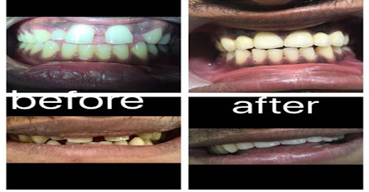 Cosmetic & Esthetic Treatment in Race Course| Dental Clinic in Trichy
