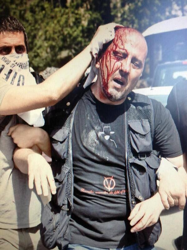 Turkish journalist / activist Ahmet Şık injured by tear gas canister thrown by Turkish Police.