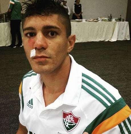 Edson, volante do Fluminense, ficou com o nariz muito inchado