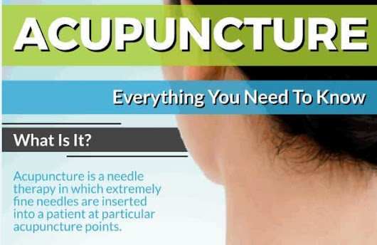 Acupuncture - Everything You Need to Know - Well Life Family Medicine