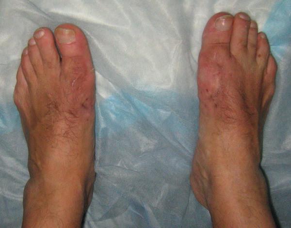 Лечение косточки на ногах в израиле
