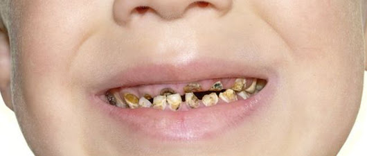Child tooth removal is at 'crisis point' doctors warn - Harpenden Smiles