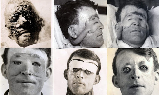 Search for family of the first ever plastic surgery patient
