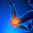 Golfers and Tennis Elbow Tendonitis Recovery Orlando