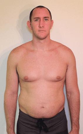 body fat percentage veins stomach