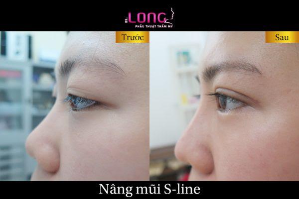 Phân biệt  nâng mũi s-line 3d và  sửa cao sống mũi  thường khác nhau thế nào