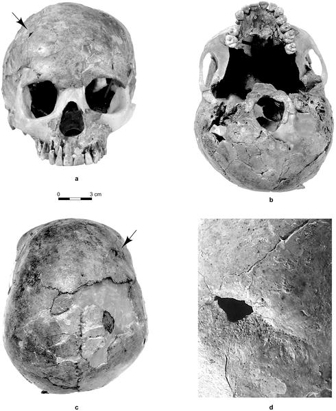 Figura 1 El cráneo Qafzeh 11.